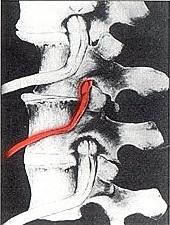 back pain headaches neck pain