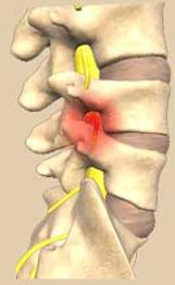 back pain shea blvd